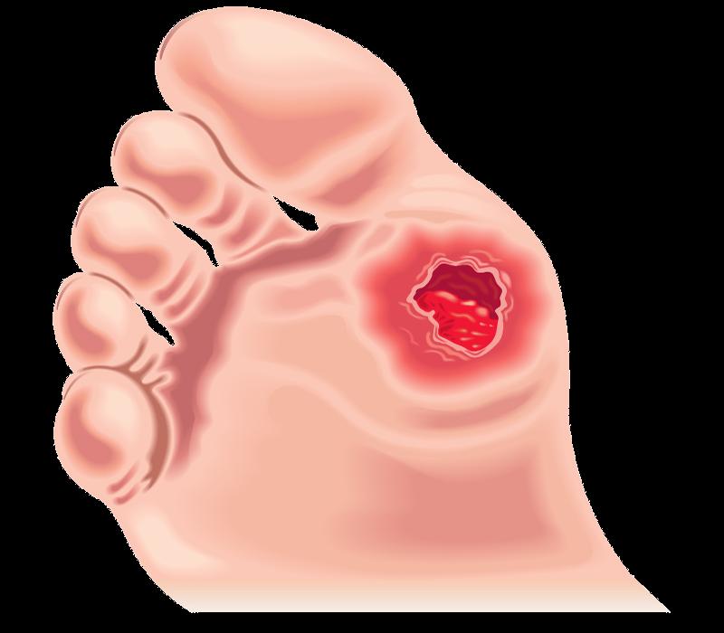 calzature-per-diabetici